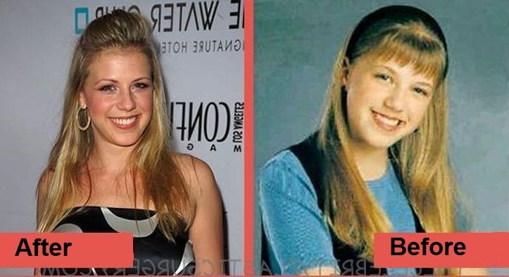 Jodie-Sweetin-boobs-job-before-and-after-plastic-surgery-2-1