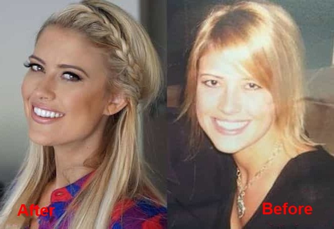 hristina-el-moussa-plastic-surgery-before-and-after-picture-1