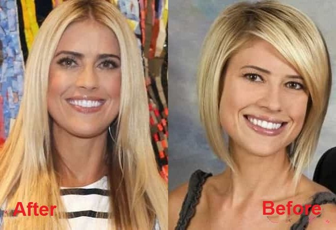 christina-el-moussa-plastic-surgery-before-and-after-picture