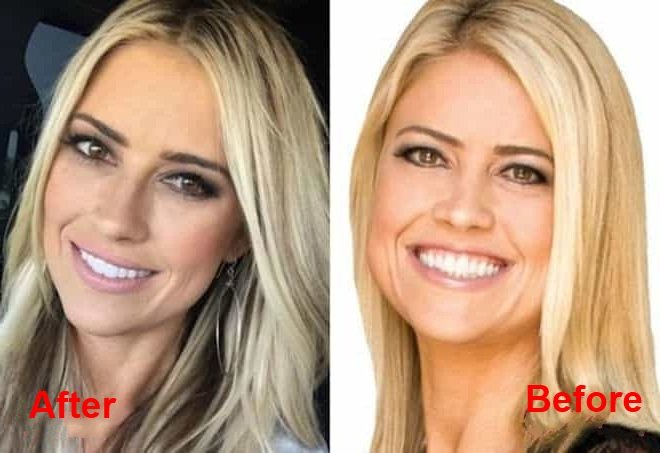 christina-el-moussa-plastic-surgery-before-and-after-picture-3