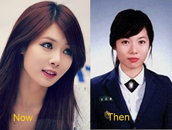 kim-hyuna-plastic-surgery-before-and-after-1-1