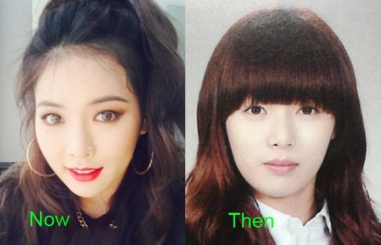 kim-hyuna-plastic-surgery-before-and-after-2-1