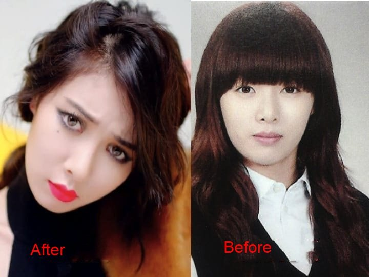 kim-hyuna-plastic-surgery-before-and-after-3-1