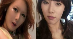 kim-hyuna-plastic-surgery-before-and-after-4-1