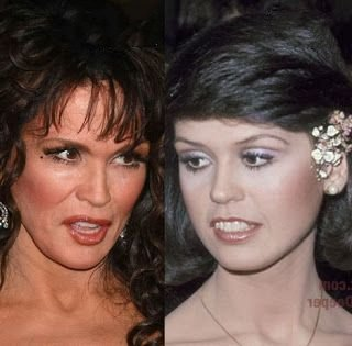 marie-osmond-plastic-surgery-before-and-after