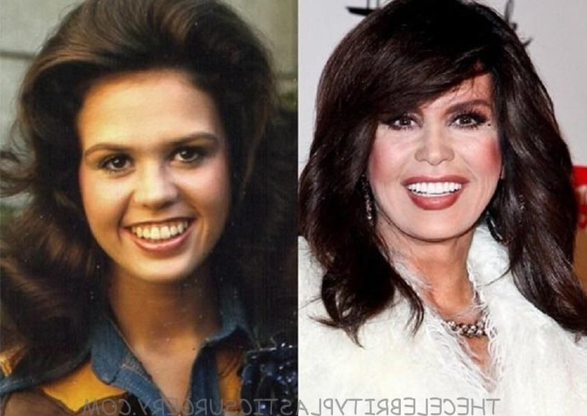 marie-osmond-plastic-surgery-facelift-1-1