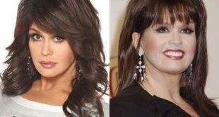 marie osmond plastic surgery