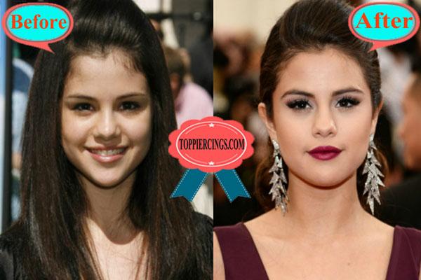 selena gomez plastic surgery
