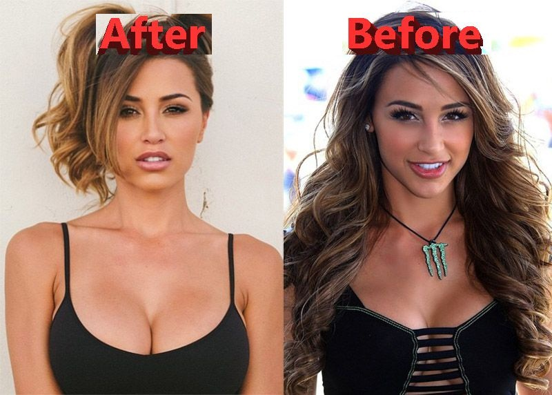 ana cheri before implants