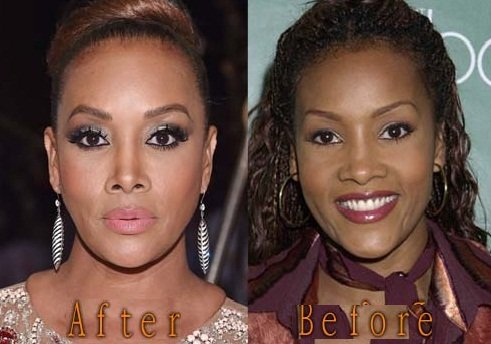 Vivica A. Fox nose job