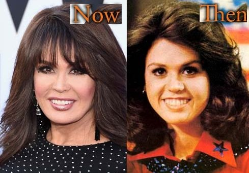 Marie Osmond before and after nose job