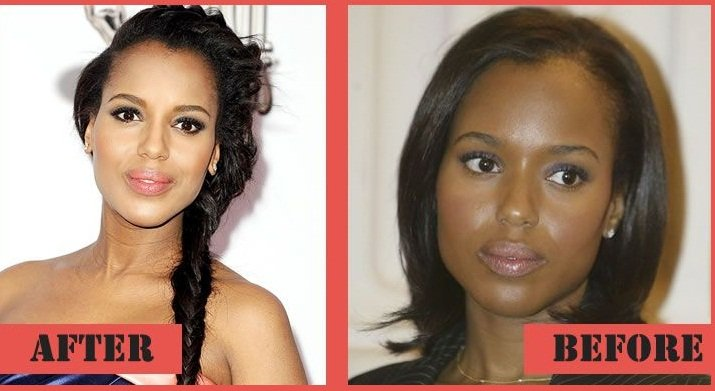 Kerry Washington before and after using Botox