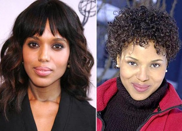 Kerry Washington before and after cheek augmentation