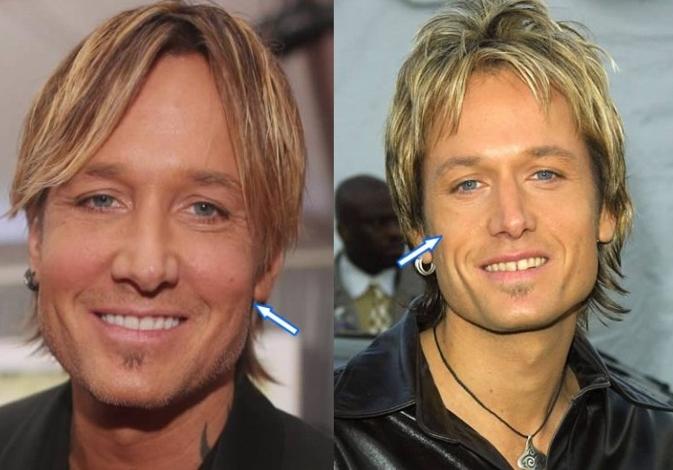 Keith Urban's cheek fillers