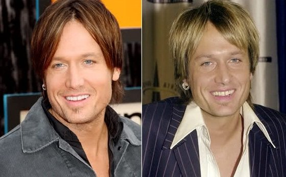 Keith Urban before and after facelift