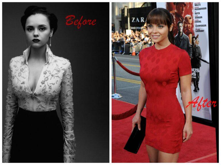 christina ricci plastic surgery