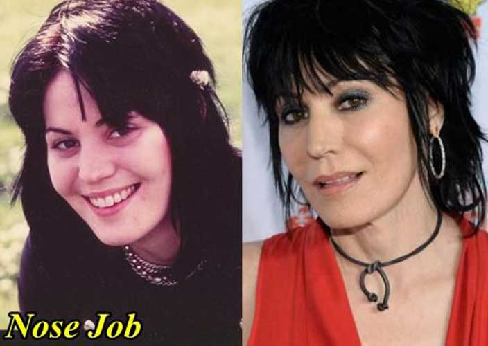 Joan Jett Nose job