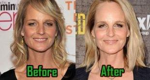 Helen Hunt Surgery, Facelift
