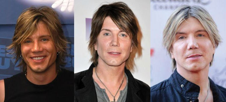 john rzeznik plastic surgery before and after 2021