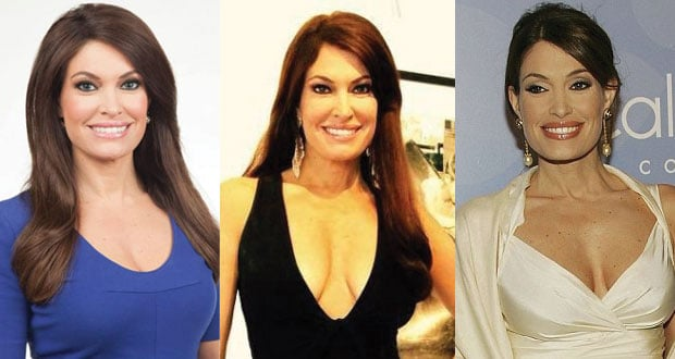 kimberly guilfoyle plastic surgery before as well as after pictures 2021